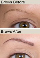 eyebrows-before&after