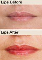 lips-before&after
